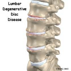 degenerate joint disease picture 11