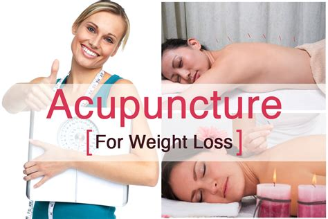 acupuncture weight loss picture 14