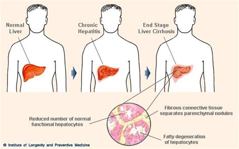 final stages of liver cirrhosis picture 1