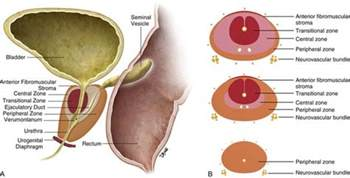 What is a prostate gland picture 15