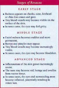 acne rash picture 3