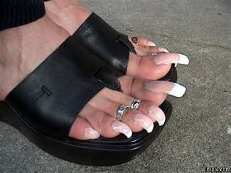 woman long toenail picture 15