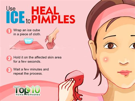 what is the best tablet? for remove acne picture 4