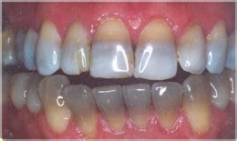 antibiotic discoloring teeth picture 13