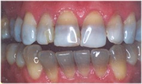 antibiotic side effects discoloring teeth picture 15