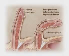 erection pain picture 5