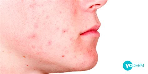 do metathione cause acne picture 15