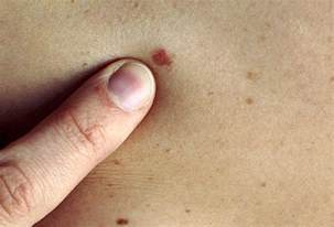 articles on skin picture 3