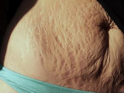 what does it mean when a stretch mark picture 9