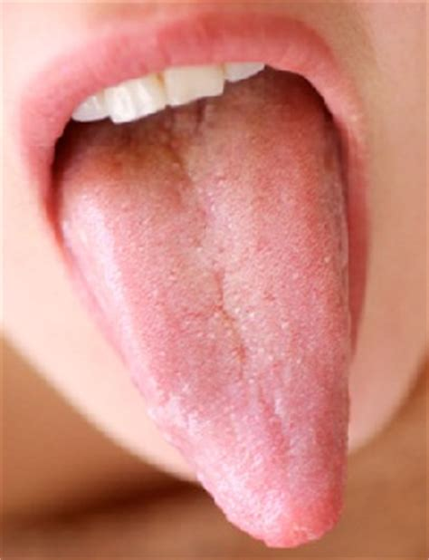 white coating on tongue from arbonne protein picture 14