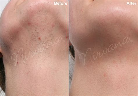 california laser hair removal picture 2