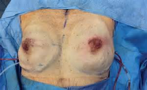 skin sparring mastectomy picture 6