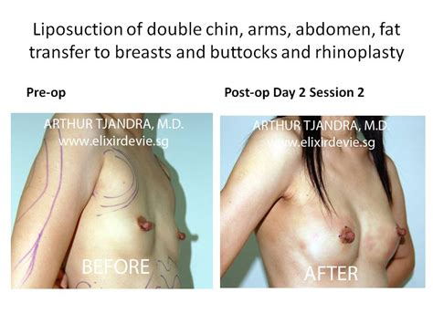 breast enhancement via fat transfer picture 2
