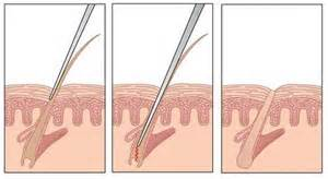 electrolysis hair removal picture 9