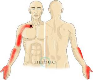 muscle pains. picture 18