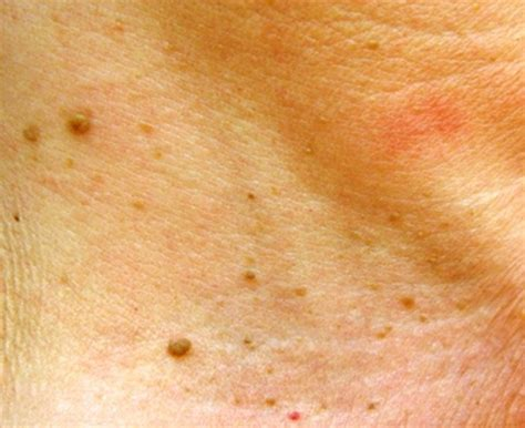 skin tag pictures picture 2