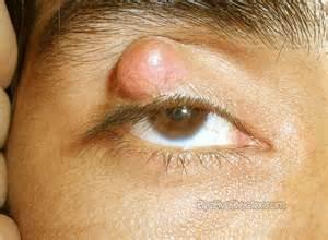 rosacea prevention picture 5