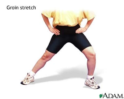 stretch mark in groin picture 5