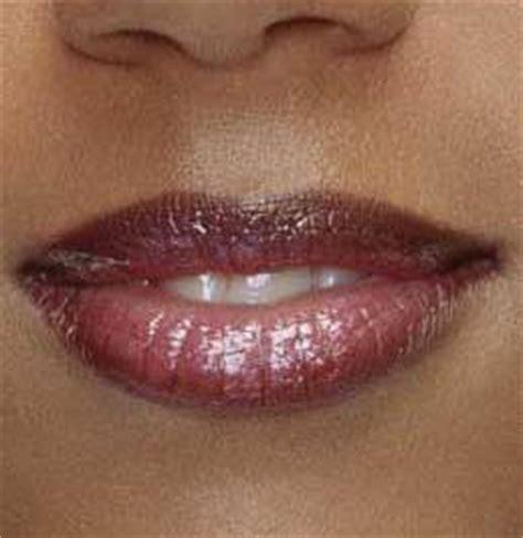 dark skin on upper lip picture 5