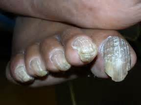 should i dig out toenail fungus picture 2