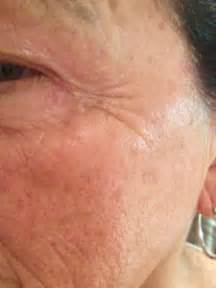 what is hyaluronic acid and equinox picture 3