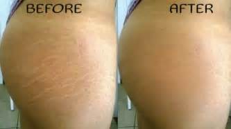 removal of stretch marks picture 1