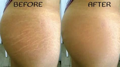 stretch marks removal picture 11