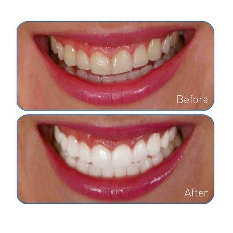 go smile teeth whitener picture 2