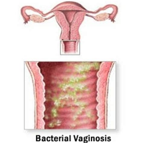 bacterial infection vaginal picture 3