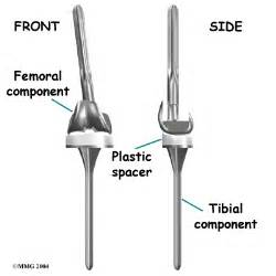 when do knee joint replacements get revised picture 9
