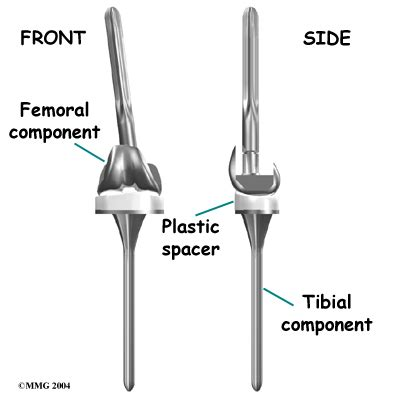 when do knee joint replacements get revised picture 8