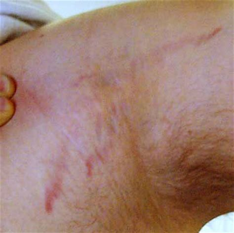 could long term antibiotics cause stretch marks picture 8
