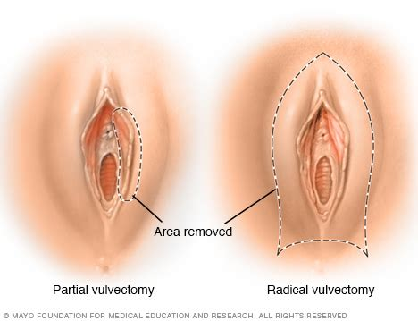 vaginal skin cancer picture 3