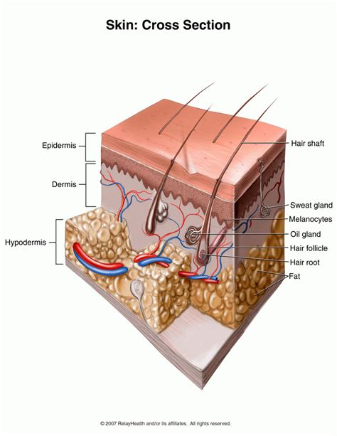 what causes skin boils picture 11