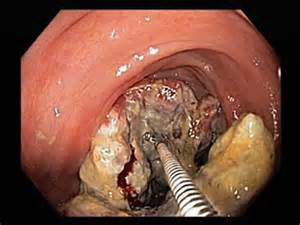 what is melanosis in the colon picture 14