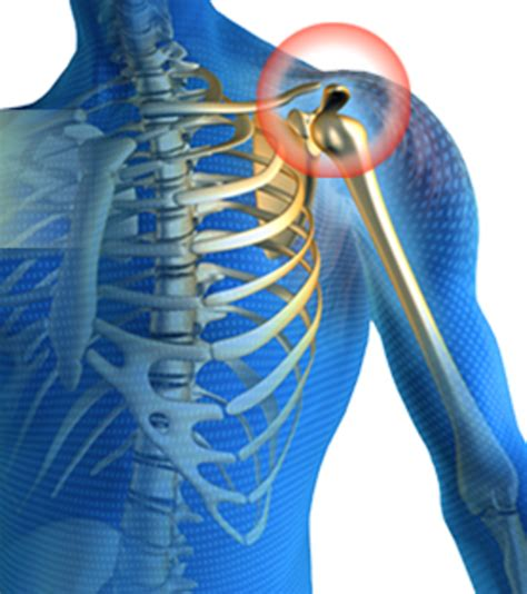 shoulder joint pain picture 3