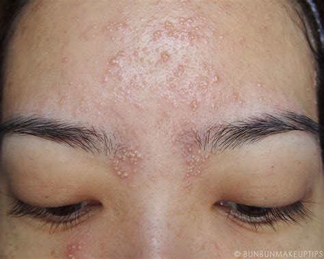 skin rash from waxing picture 1