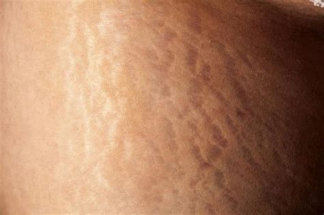 collagen and stretch marks picture 14