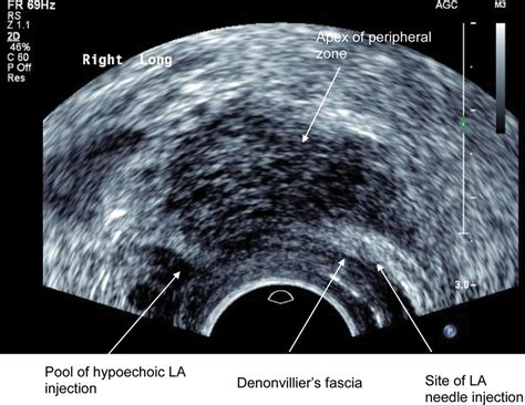 female technician prostate ultrasound stories picture 11