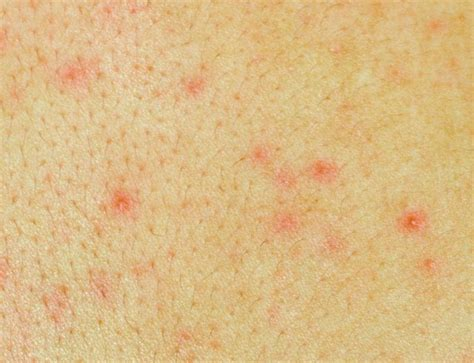 aids skin rash picture 7