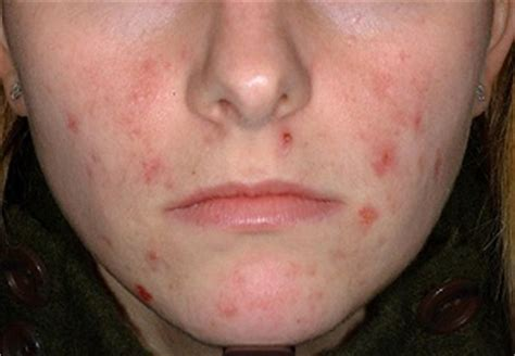 at what age does acne start picture 14