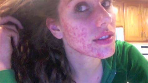 acne exoris picture 1