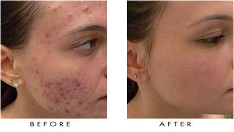 skin clear acne and laser center picture 10