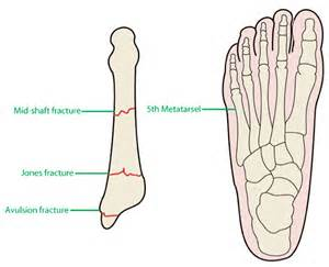 5th metatarsal pain on weight bearing picture 1