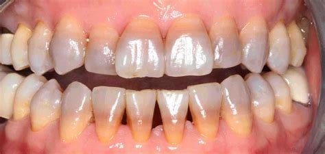 childrens teeth discoloration and veneers picture 11