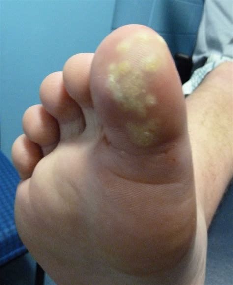plantar warts picture 3