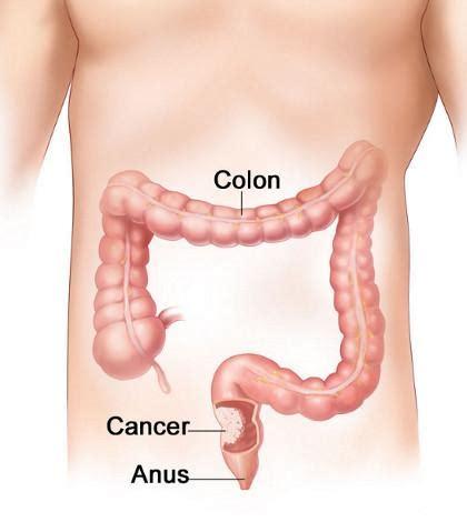 oxy colon cleanser picture 5