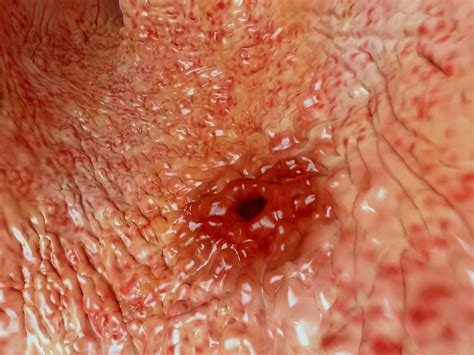 intestinal ulcers picture 3