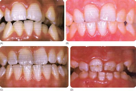 discolored teeth enamel effacia picture 1