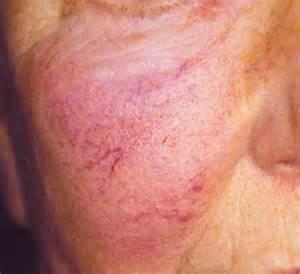 rosacea relief serum picture 10